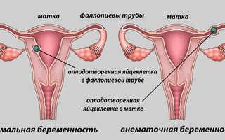 Может ли быть внематочная беременность после проведения ЭКО
