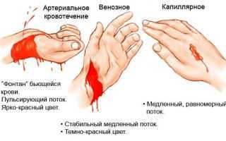 Оказание первой мед помощи