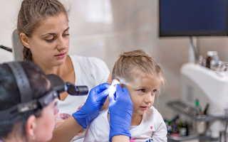 Гнойный отит у детей и взрослых лечение симптомы