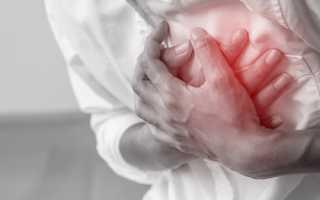 Кардиомиопатия: что нужно знать