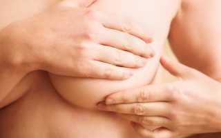 12 рецептов компрессов при лактостазе: как прикладывать капустный лист, медовую лепешку и другие народные средства