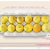 Узнай по лимонам: как распознать ранние признаки рака груди