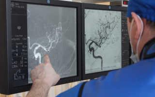 В головной мозг — через 1 прокол