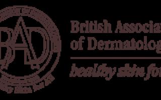 Лечение КОЛЬЦЕВИДНОЙ ГРАНУЛЕМЫ; Рекомендации Британской ассоциации дерматологов (перевод и адаптация проф