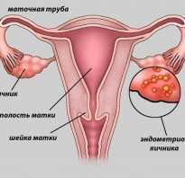 Альтернативные методы лечения эндометриоза