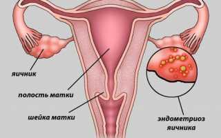 Лучшие противозачаточные средства при эндометриозе