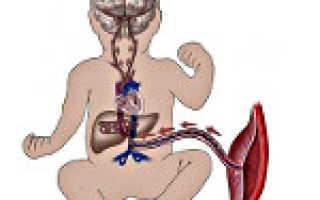 Нарушение маточно-плацентарного кровотока