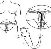 Рекомендации врачей после проведения гистероскопии