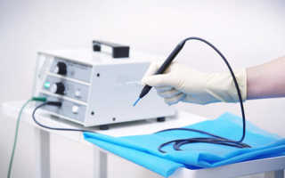 Радиоволновое лечение шейки матки аппаратом «Сургитрон»