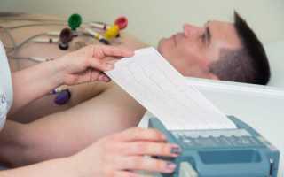 Причины появления аритмии после еды первая помощь и профилактика