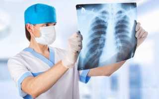 Внебольничные пневмонии: симптомы и лечение