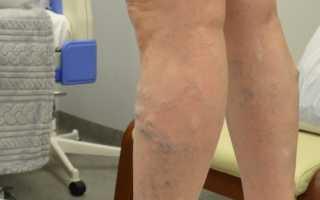 Современные методы лечения варикозного расширения вен на ногах