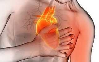 Атеросклероз: симптомы, диагностика и лечение