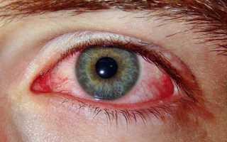 Что предпринять, если глаз красный и лопнул сосуд