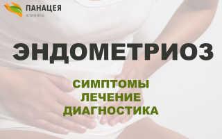 Аденомиоз – разрастание эндометрия матки