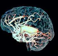 Что такое очаговое изменение вещества мозга дистрофического характера