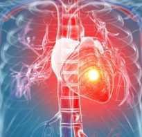 Коротко о лечении инфаркта миокарда в Красноярске
