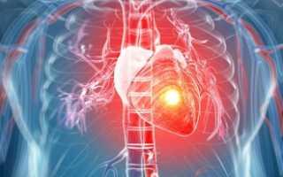 Инфаркт миокарда неотложная помощь принципы лечения в стационаре