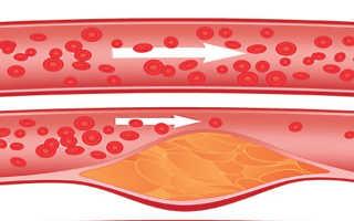 Как лечить атеросклероз сосудов? Профилактика и целебные действия санаторно-курортных процедур