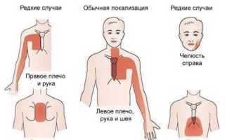 Стенокардия напряжения калассификация и симптомы первая помощь и лечение
