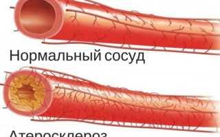 Профилактика атеросклероза сосудов