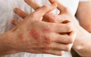 Нейродермит: причины и профилактика заболевания