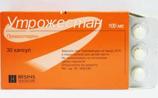 Отзывы о лечении эндометриоза препаратом Утрожестан