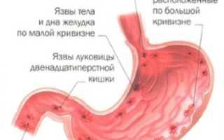 Этиология симптоматика и лечение язвенной болезни желудка