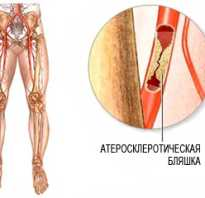 Облитерирующий атеросклероз артерий нижних конечностей (ОАСНК)