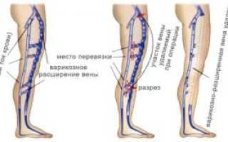 Особенности проведения флебэктомии вен нижних конечностей