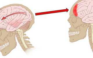 Артериальное давление при сотрясении головного мозга