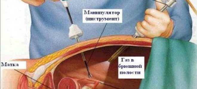 Киста яичника — лечение и операция
