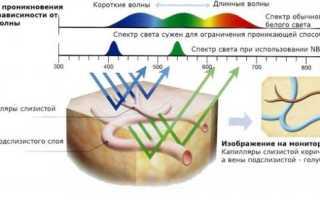 Советы эндоскописта — Обследование толстой кишки: колоноскопия или «что-нибудь еще»
