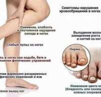 Атеросклеротическая гангрена нижних конечностей