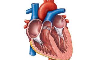 Как проявляется миокардит – профилактика воспаления сердечной мышцы