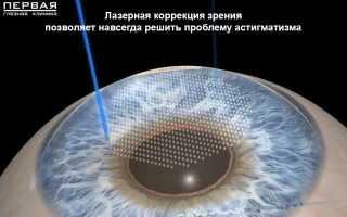 Можно ли вылечить гиперметропический астигматизм
