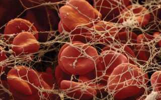 Фибриноген – что это такое, о чем говорит и как правильно определить показатель