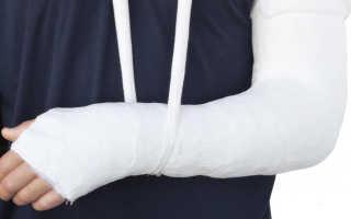Полезная информация о переломе костей кисти