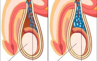 Каковы последствия варикоцеле при отсутствии лечения?