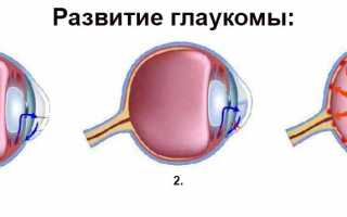 Причины симптомы особенности лечение и профилактика глаукомы