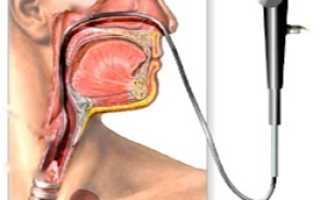 Осложнения которые может принести инфаркт легкого
