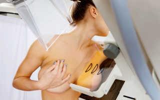 Дуктография — если обычная маммография оказалась неинформативна