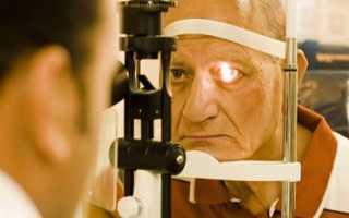 Глаукома: каждый должен знать