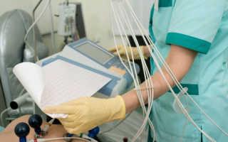 ЭКГ при беременности