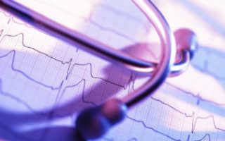 Головокружение сердцебиение и слабость причины и лечение