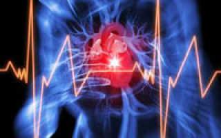 Симптомы и лечение синдрома острой левожелудочковой недостаточности