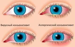 Вирусный конъюнктивит: симптомы и лечение