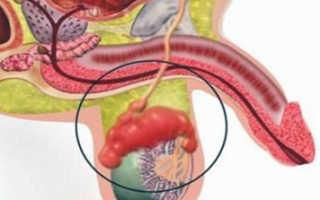 Как распознать симптомы орхоэпидидимита