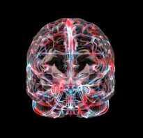 Тромбоз сосудов головного мозга: симптомы и лечение