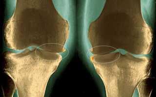 Остеоартроз (Деформирующий артроз)